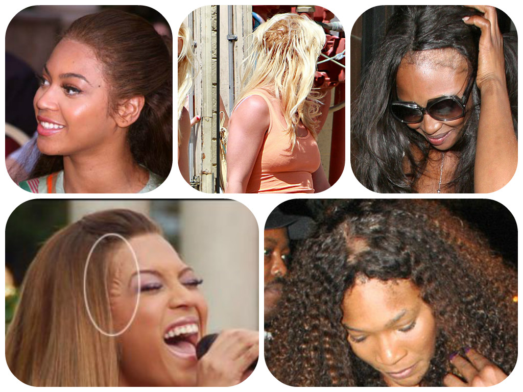 How To Prevent A Bad Hair Weave Black Girl Health Blog